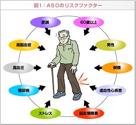 ASOのリスクファクター図